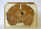 Glioblastoma of the corpus callosum